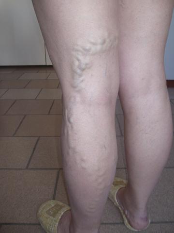 Когда пройдет боль в ногах от тромбоза